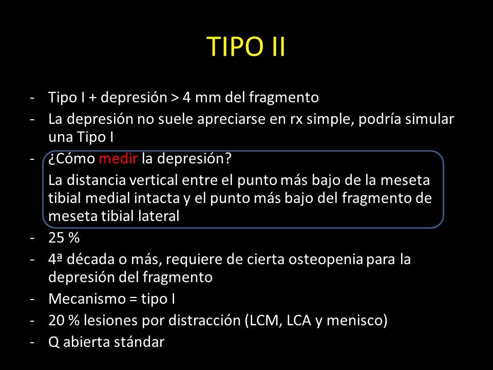 TIPO II -Tipo I + depresión > 4 mm del fragmento -La depresión no suele apreciarse en rx simple, podría simular una Tipo I -¿Cómo medir la depresión?
