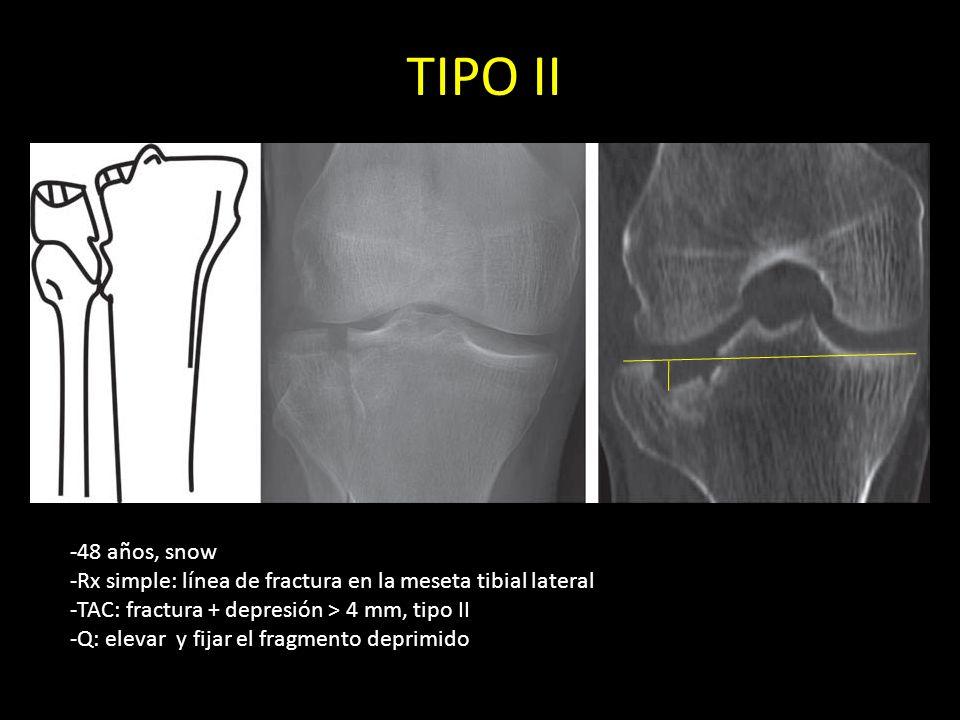 TIPO II -48 años, snow -Rx simple: línea de fractura en la meseta tibial lateral -TAC: fractura + depresión > 4 mm, tipo II -Q: elevar y fijar el frag