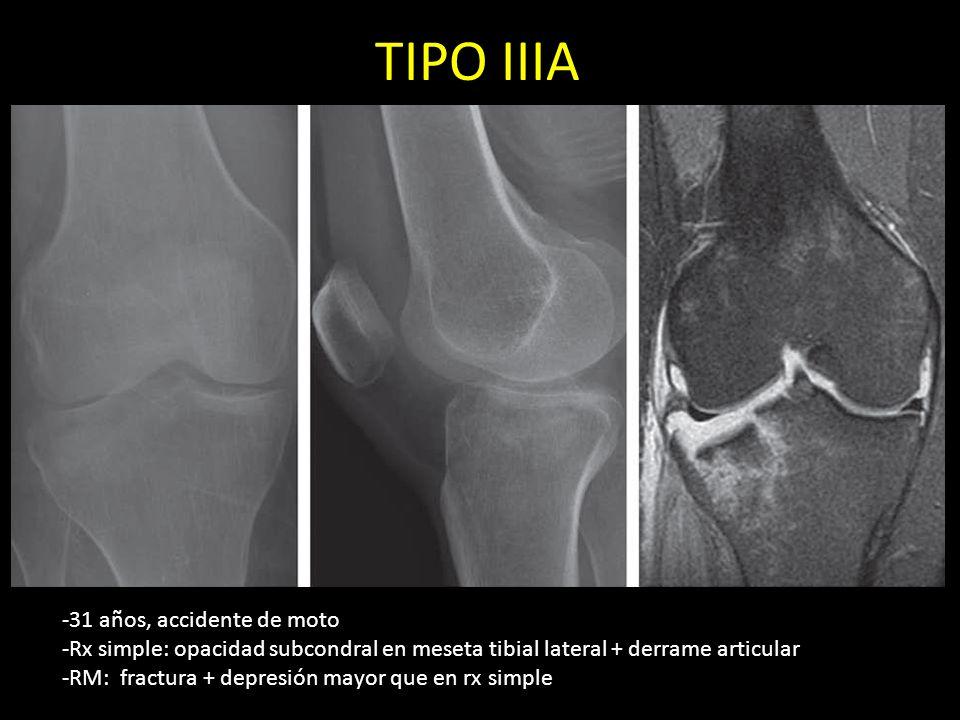 TIPO IIIA -31 años, accidente de moto -Rx simple: opacidad subcondral en meseta tibial lateral + derrame articular -RM: fractura + depresión mayor que