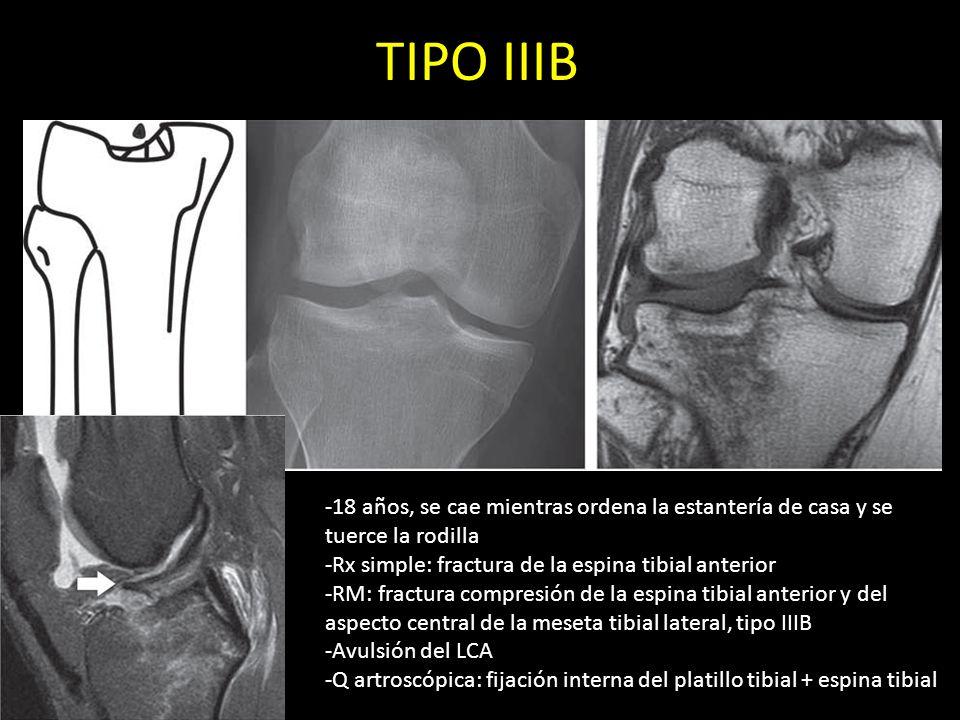 TIPO IIIB -18 años, se cae mientras ordena la estantería de casa y se tuerce la rodilla -Rx simple: fractura de la espina tibial anterior -RM: fractur