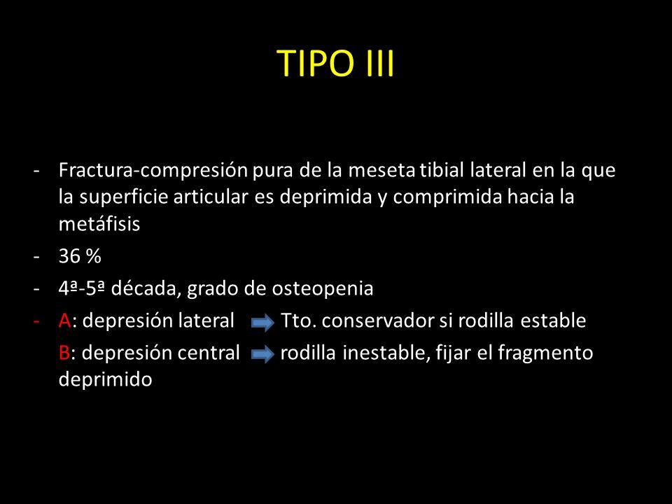 TIPO III -Fractura-compresión pura de la meseta tibial lateral en la que la superficie articular es deprimida y comprimida hacia la metáfisis -36 % -4