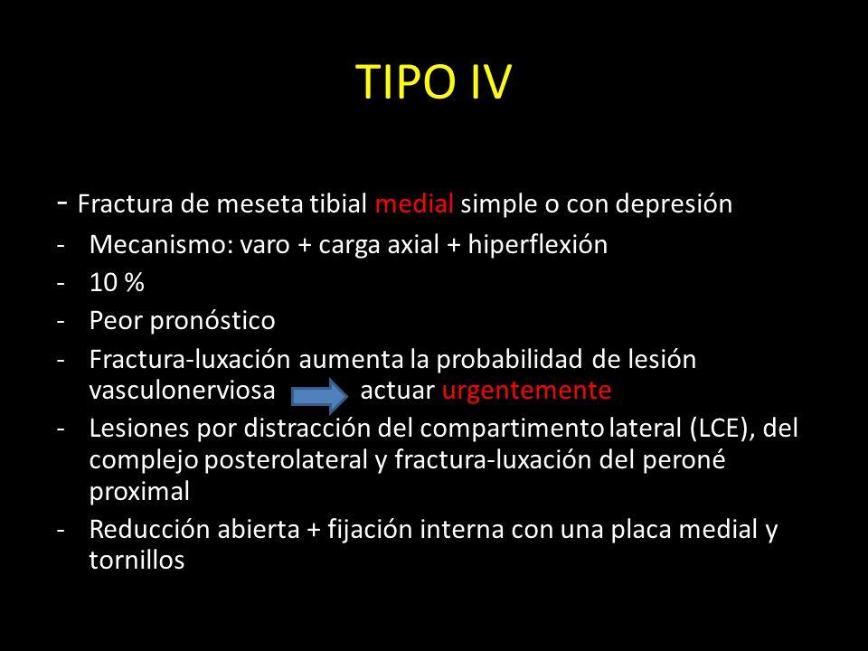 TIPO IV - Fractura de meseta tibial medial simple o con depresión -Mecanismo: varo + carga axial + hiperflexión -10 % -Peor pronóstico -Fractura-luxac