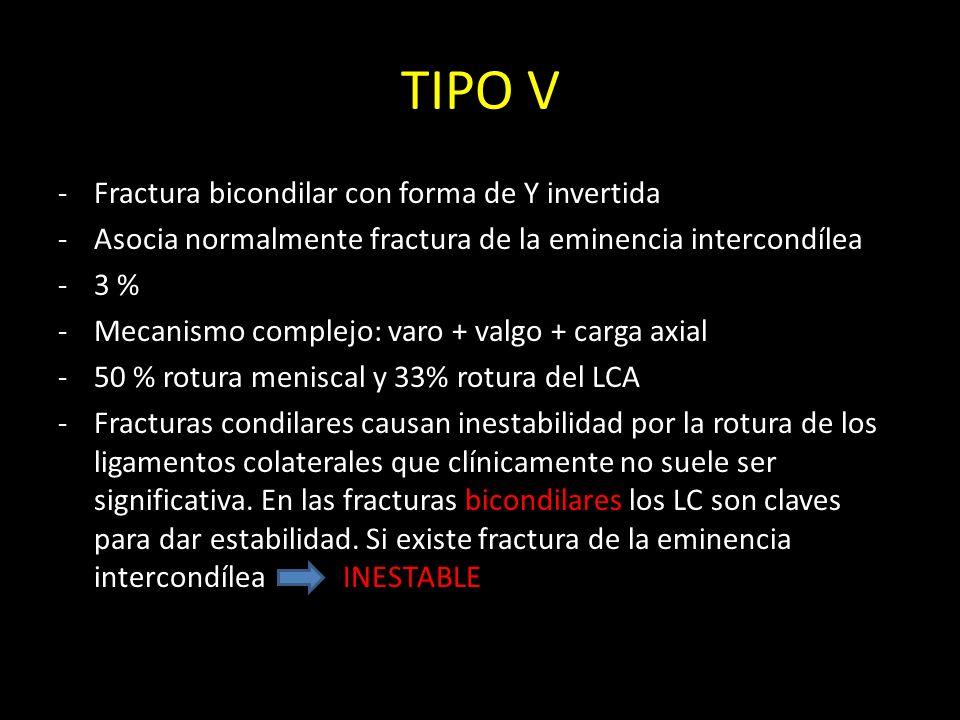 TIPO V -Fractura bicondilar con forma de Y invertida -Asocia normalmente fractura de la eminencia intercondílea -3 % -Mecanismo complejo: varo + valgo