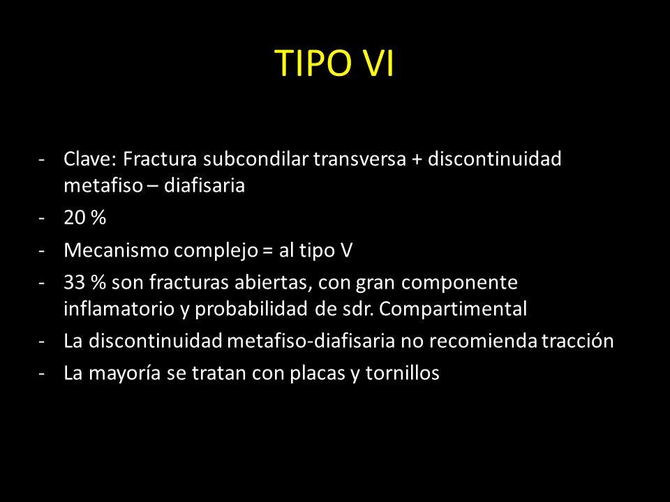 TIPO VI -Clave: Fractura subcondilar transversa + discontinuidad metafiso – diafisaria -20 % -Mecanismo complejo = al tipo V -33 % son fracturas abier