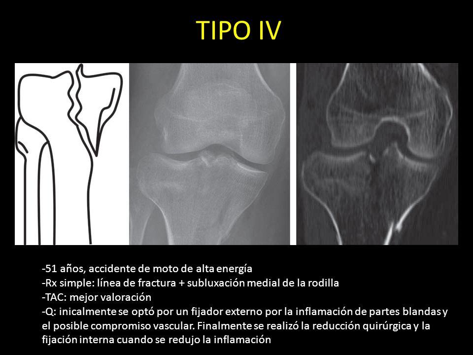TIPO IV -51 años, accidente de moto de alta energía -Rx simple: línea de fractura + subluxación medial de la rodilla -TAC: mejor valoración -Q: inical