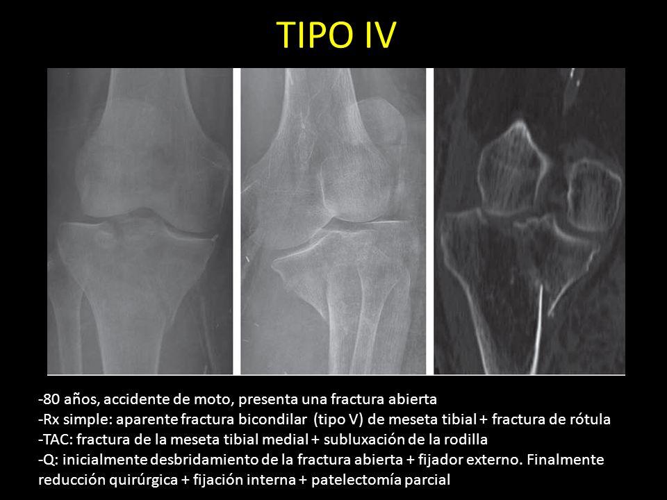 TIPO IV -80 años, accidente de moto, presenta una fractura abierta -Rx simple: aparente fractura bicondilar (tipo V) de meseta tibial + fractura de ró
