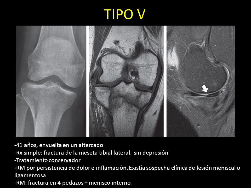 TIPO V -41 años, envuelta en un altercado -Rx simple: fractura de la meseta tibial lateral, sin depresión -Tratamiento conservador -RM por persistenci