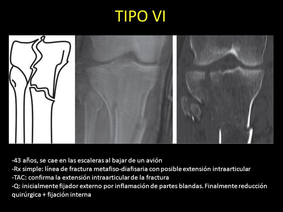 TIPO VI -43 años, se cae en las escaleras al bajar de un avión -Rx simple: línea de fractura metafiso-diafisaria con posible extensión intraarticular