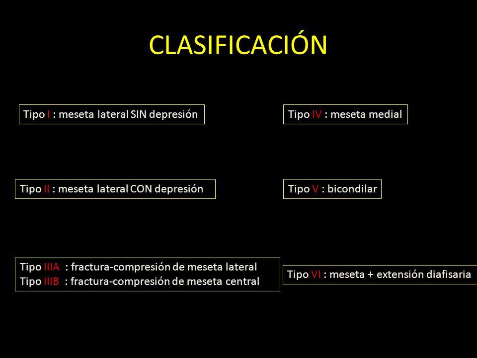 CLASIFICACIÓN Tipo I : meseta lateral SIN depresión Tipo II : meseta lateral CON depresión Tipo IIIA : fractura-compresión de meseta lateral Tipo IIIB
