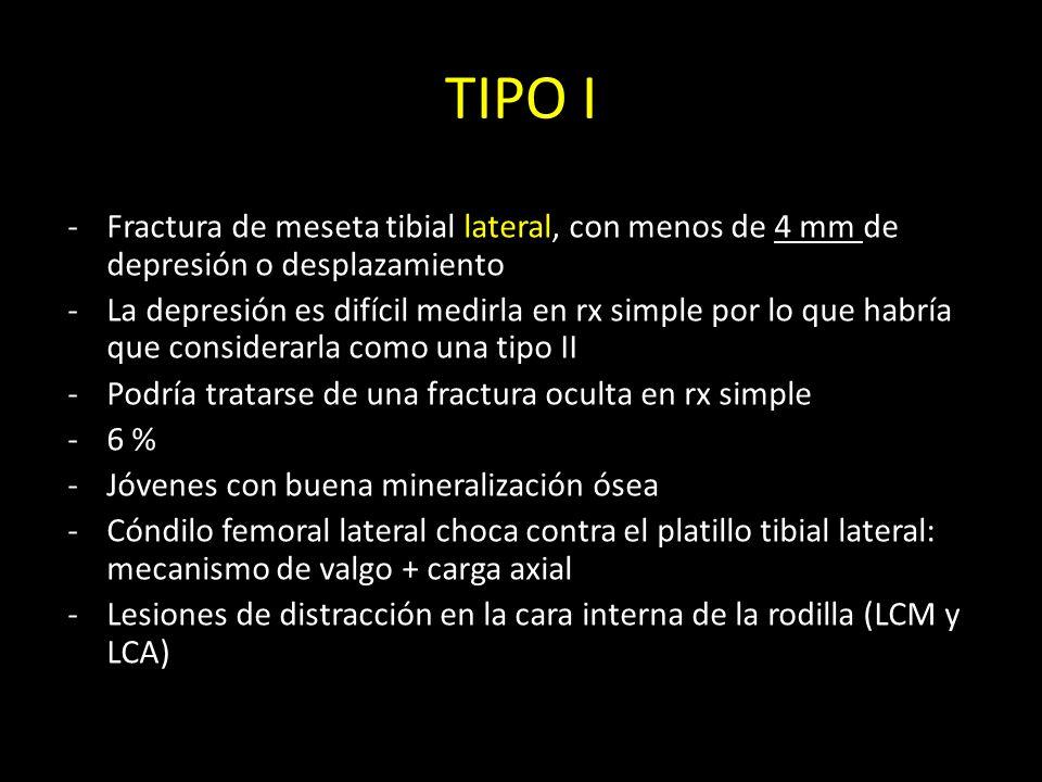 TIPO I -Fractura de meseta tibial lateral, con menos de 4 mm de depresión o desplazamiento -La depresión es difícil medirla en rx simple por lo que ha