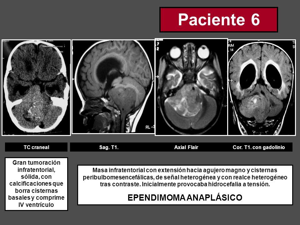 TC cranealSag. T1.Axial FlairCor. T1. con gadolinio Gran tumoración infratentorial, sólida, con calcificaciones que borra cisternas basales y comprime