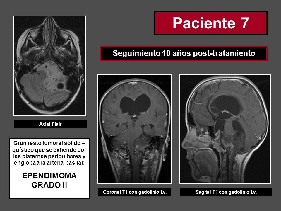 Paciente 7 Seguimiento 10 años post-tratamiento Coronal T1 con gadolinio i.v.Sagital T1 con gadolinio i.v. Axial Flair Gran resto tumoral sólido – quí