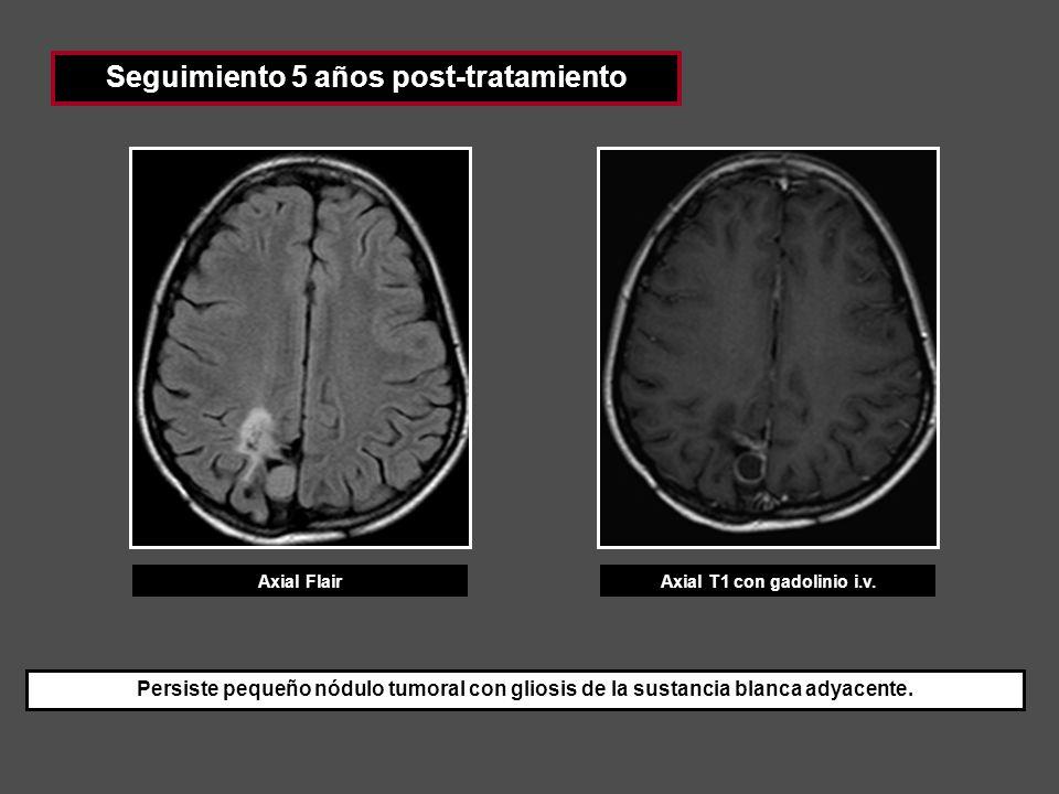 Seguimiento 5 años post-tratamiento Axial FlairAxial T1 con gadolinio i.v. Persiste pequeño nódulo tumoral con gliosis de la sustancia blanca adyacent
