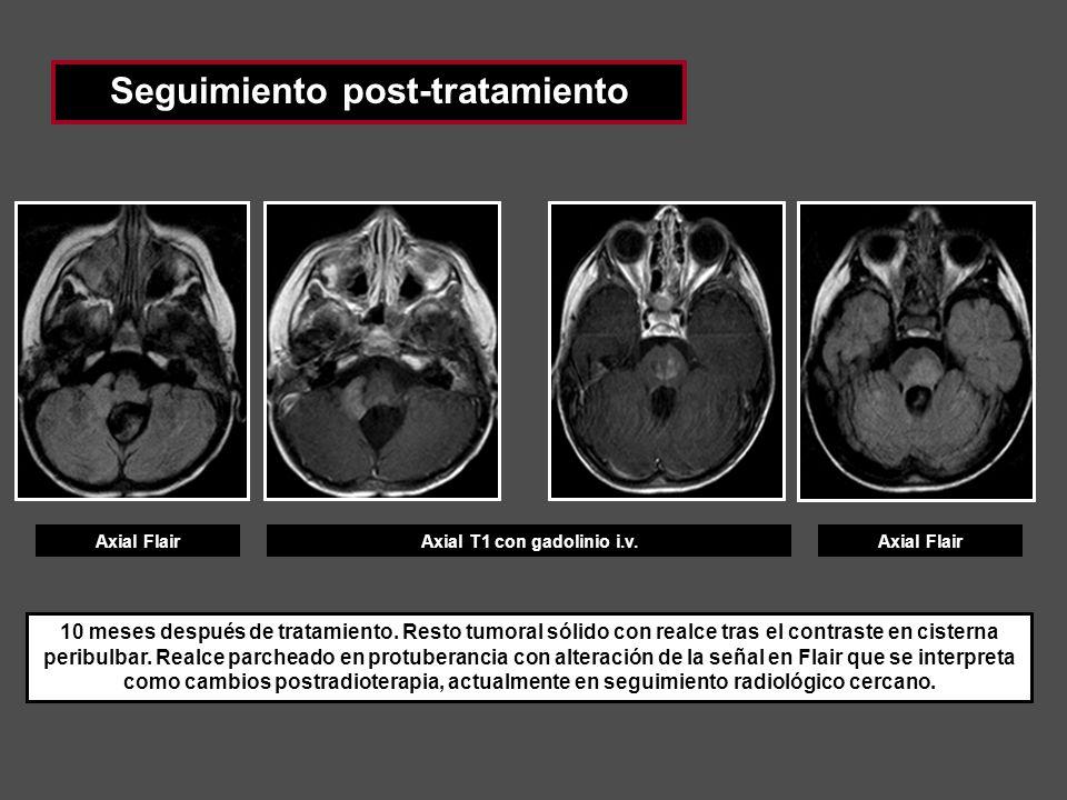 Seguimiento post-tratamiento Axial T1 con gadolinio i.v.Axial Flair 10 meses después de tratamiento. Resto tumoral sólido con realce tras el contraste