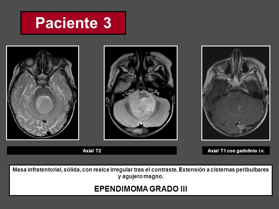 Paciente 3 Axial T2Axial T1 con gadolinio i.v. Masa infratentorial, sólida, con realce irregular tras el contraste. Extensión a cisternas peribulbares