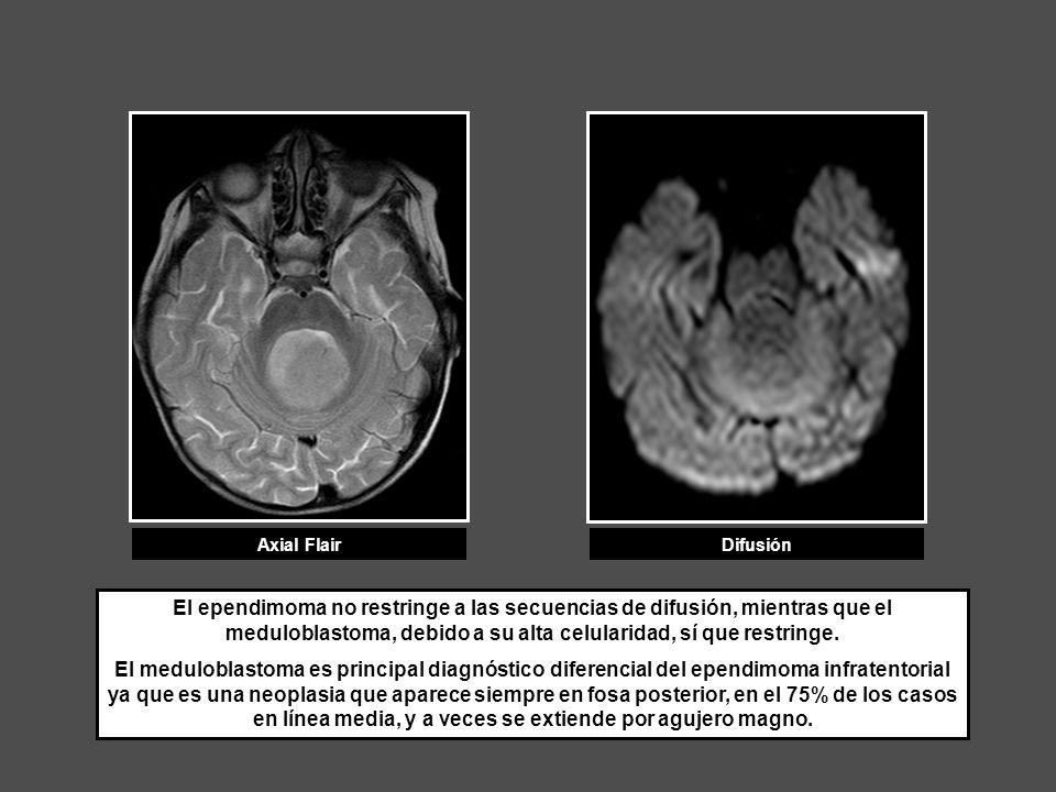Axial FlairDifusión El ependimoma no restringe a las secuencias de difusión, mientras que el meduloblastoma, debido a su alta celularidad, sí que rest