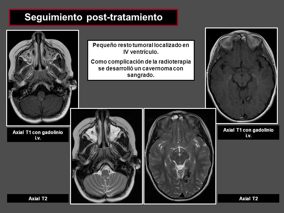 Seguimiento post-tratamiento Axial T1 con gadolinio i.v. Axial T2 Axial T1 con gadolinio i.v. Axial T2 Pequeño resto tumoral localizado en IV ventrícu