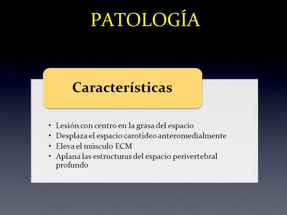 PATOLOGÍA Lesión con centro en la grasa del espacio Desplaza el espacio carotídeo anteromedialmente Eleva el músculo ECM Aplana las estructuras del es