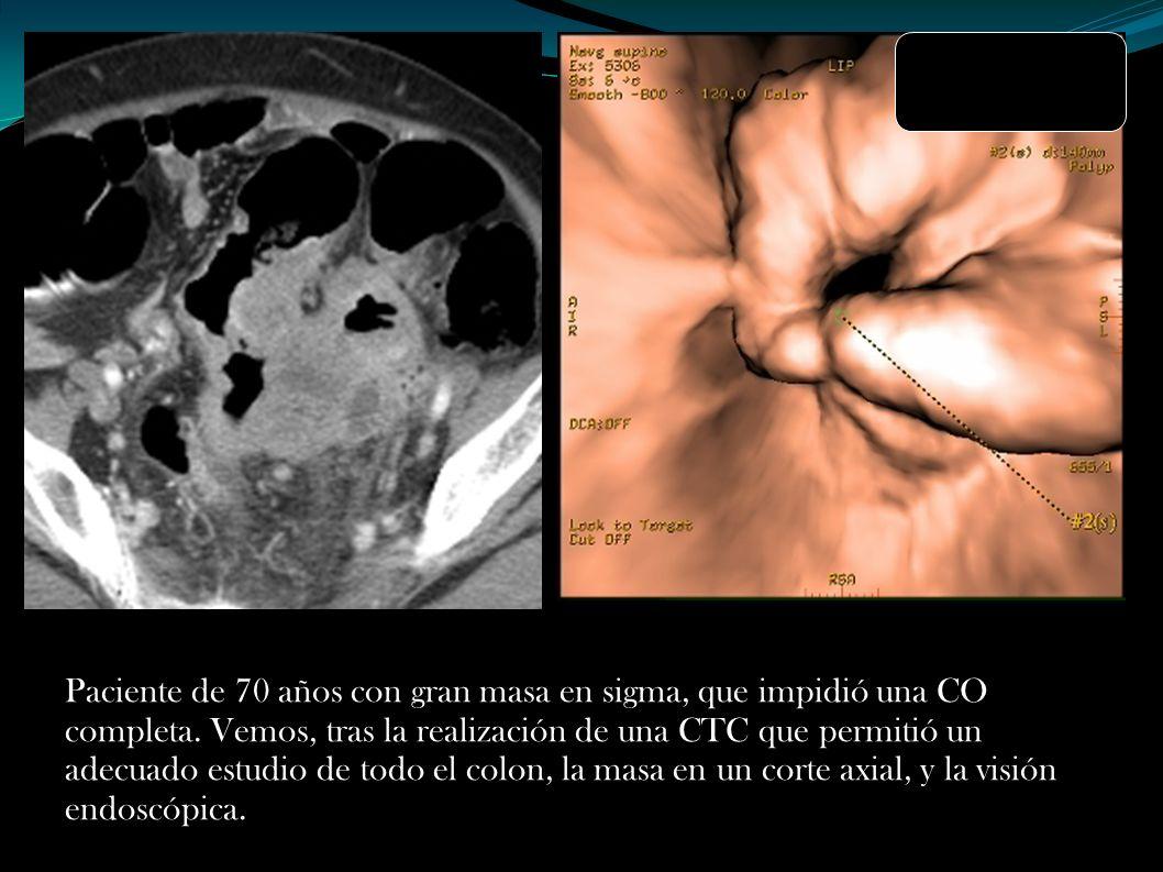 Paciente de 70 años con gran masa en sigma, que impidió una CO completa. Vemos, tras la realización de una CTC que permitió un adecuado estudio de tod