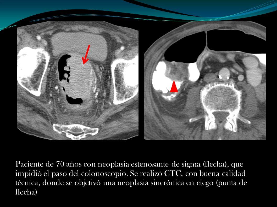 Paciente de 70 años con neoplasia estenosante de sigma (flecha), que impidió el paso del colonoscopio. Se realizó CTC, con buena calidad técnica, dond