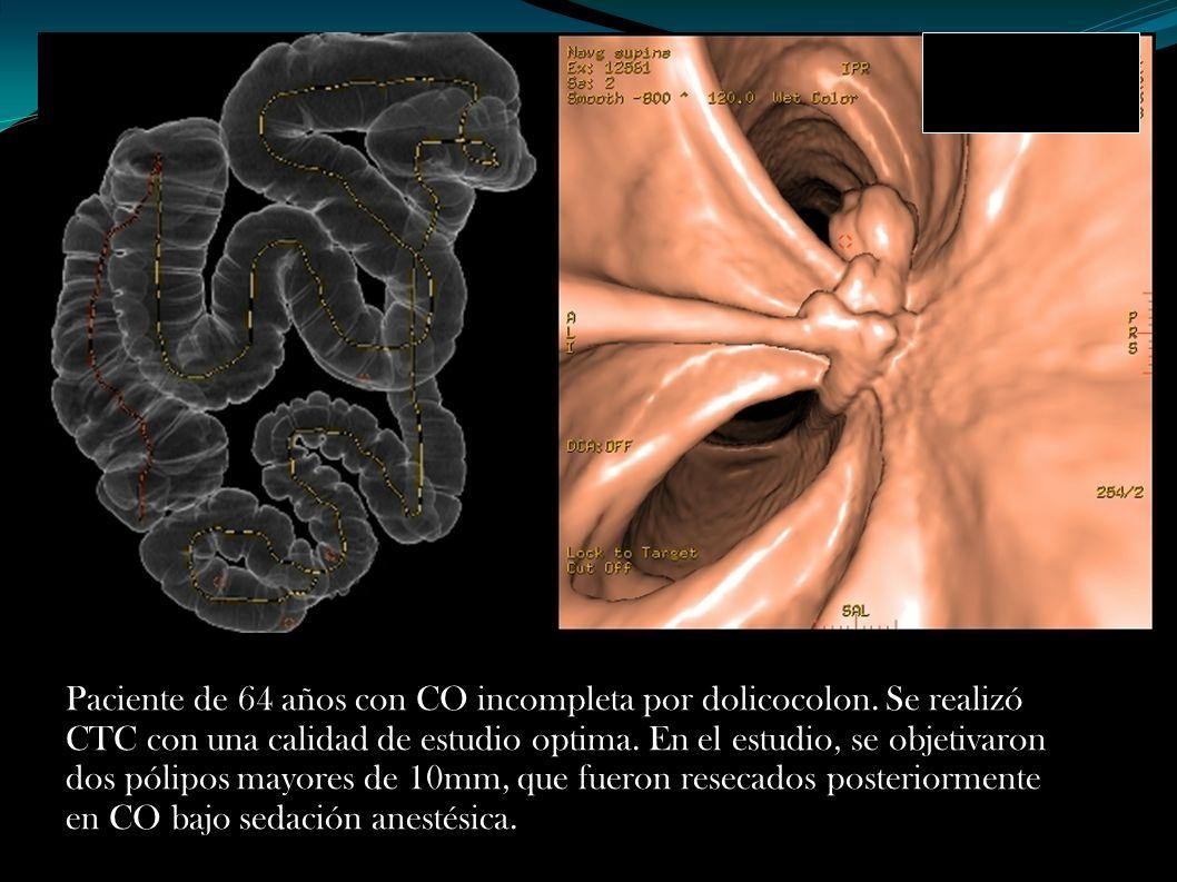 Paciente de 64 años con CO incompleta por dolicocolon. Se realizó CTC con una calidad de estudio optima. En el estudio, se objetivaron dos pólipos may