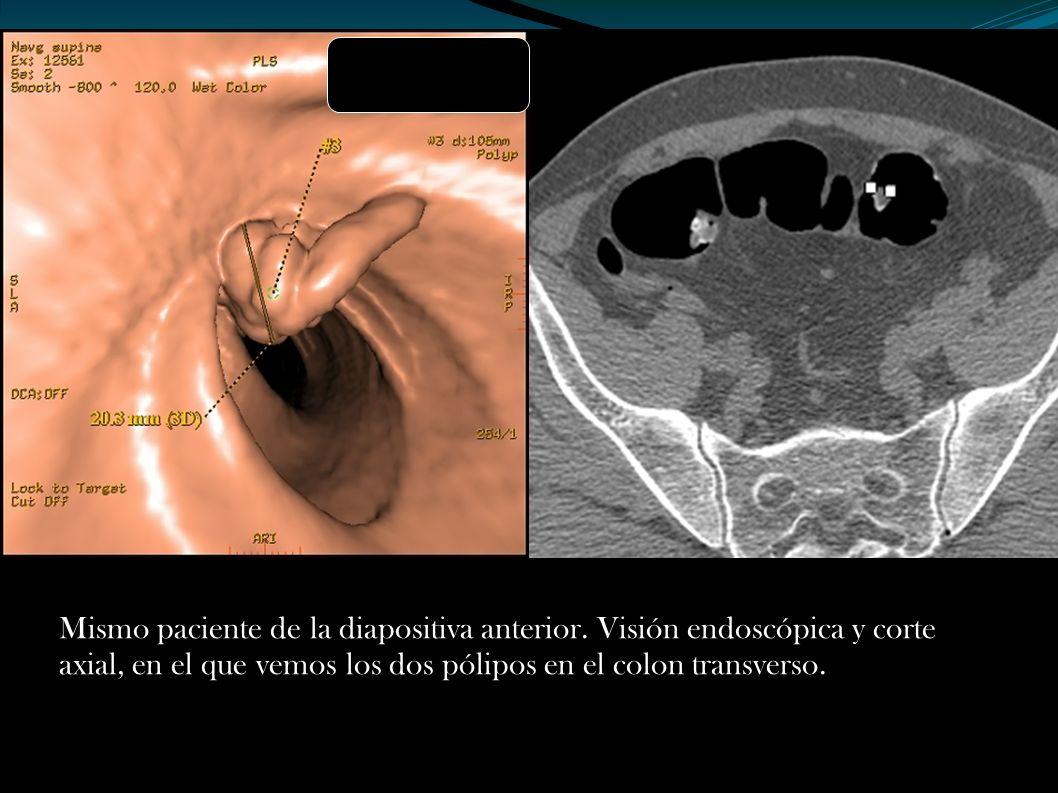 Mismo paciente de la diapositiva anterior. Visión endoscópica y corte axial, en el que vemos los dos pólipos en el colon transverso.