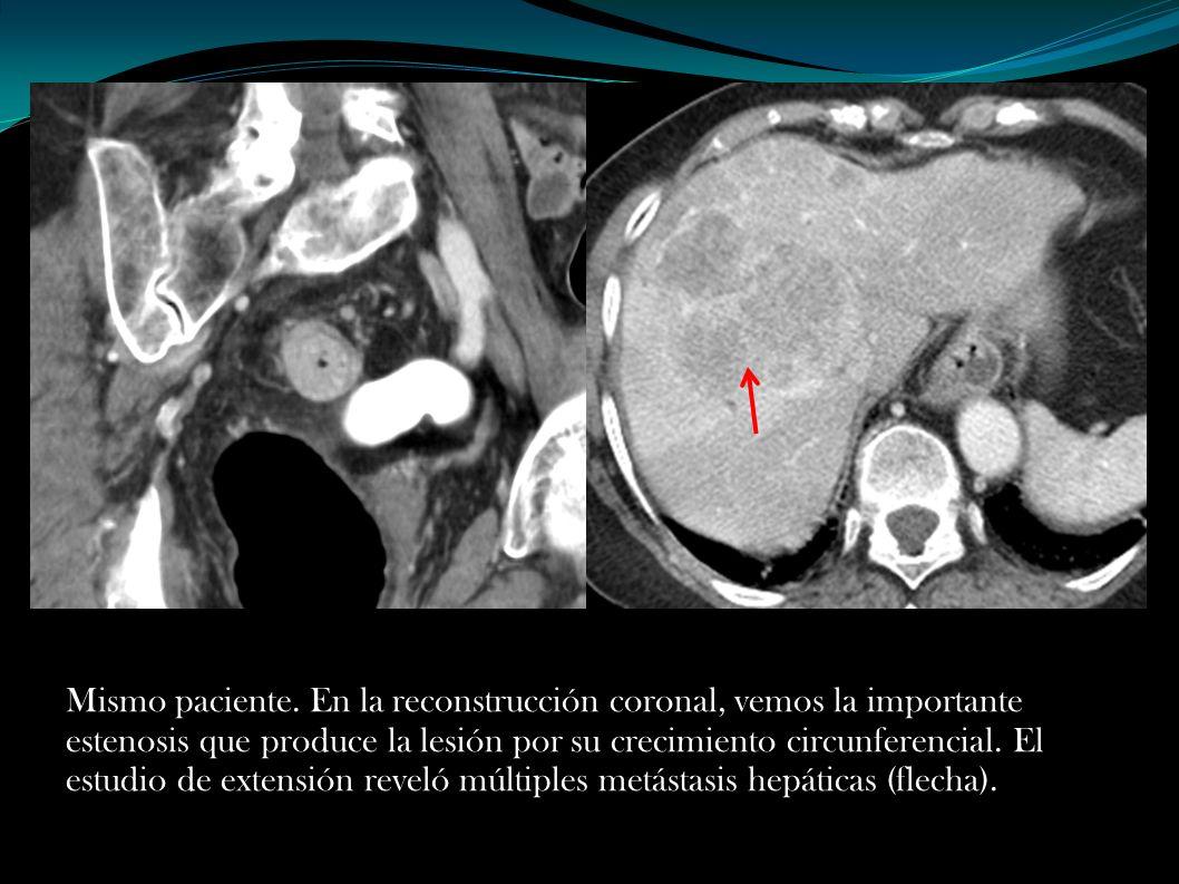 Mismo paciente. En la reconstrucción coronal, vemos la importante estenosis que produce la lesión por su crecimiento circunferencial. El estudio de ex