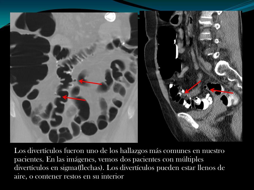Los divertículos fueron uno de los hallazgos más comunes en nuestro pacientes. En las imágenes, vemos dos pacientes con múltiples divertículos en sigm