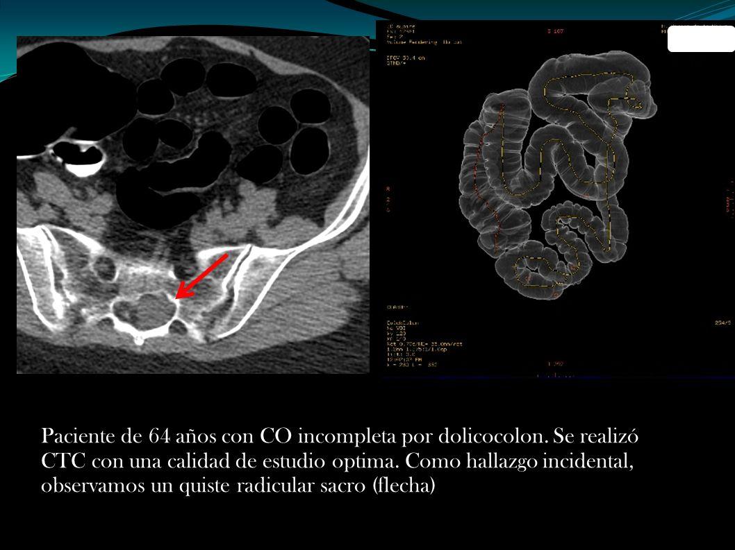 Paciente de 64 años con CO incompleta por dolicocolon. Se realizó CTC con una calidad de estudio optima. Como hallazgo incidental, observamos un quist