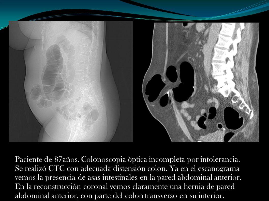 Paciente de 87años. Colonoscopia óptica incompleta por intolerancia. Se realizó CTC con adecuada distensión colon. Ya en el escanograma vemos la prese