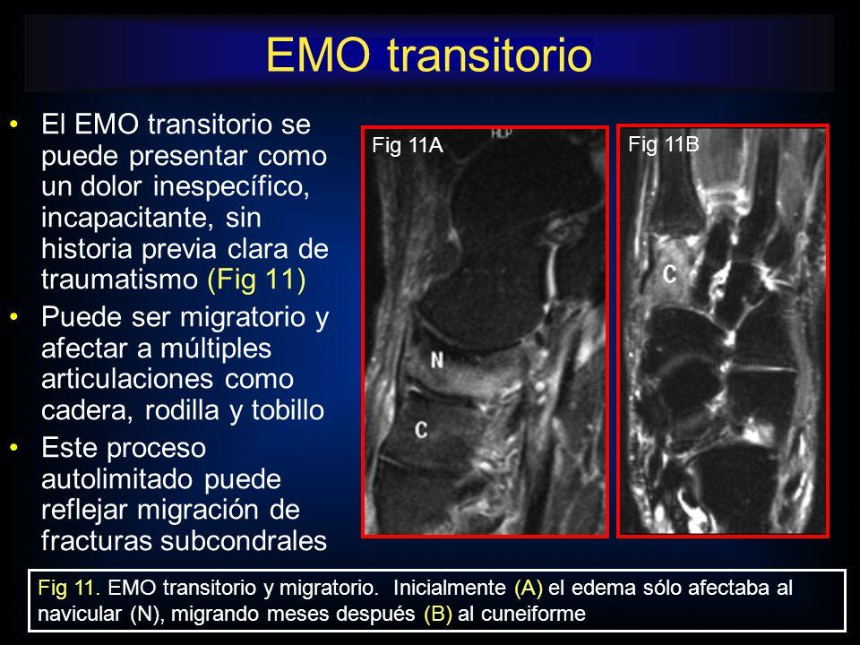 El EMO transitorio se puede presentar como un dolor inespecífico, incapacitante, sin historia previa clara de traumatismo (Fig 11) Puede ser migratori
