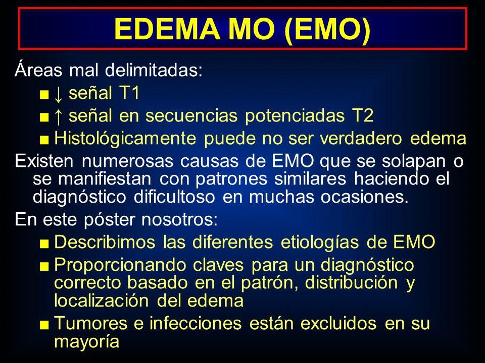 Áreas mal delimitadas: señal T1 señal en secuencias potenciadas T2 Histológicamente puede no ser verdadero edema Existen numerosas causas de EMO que s