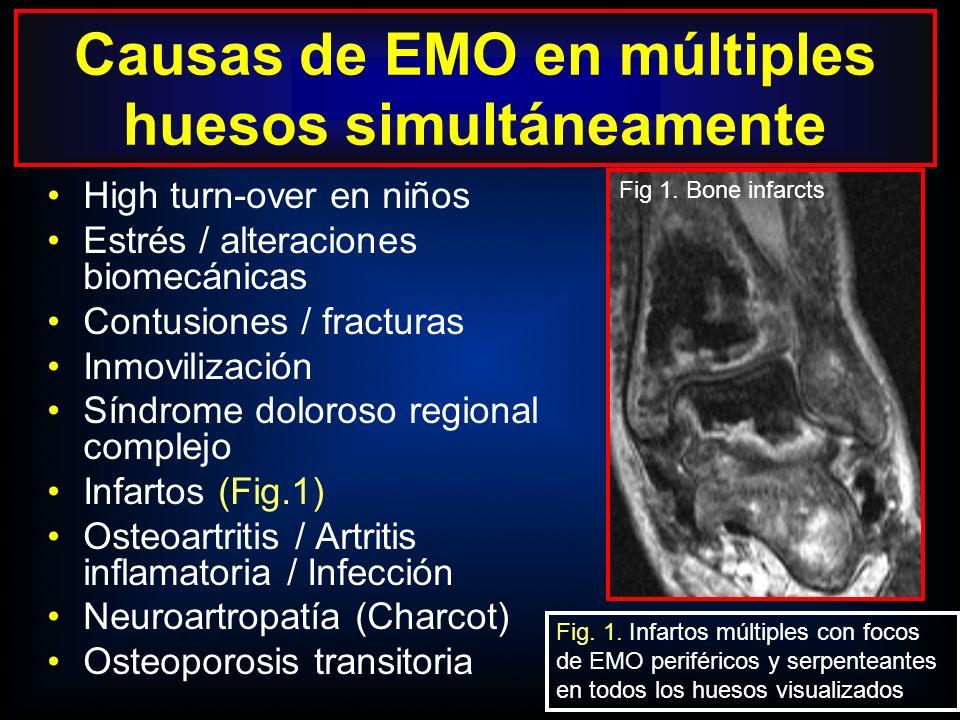EMO con múltiples focos de señal en múltiples huesos: frecuente en niños típicamente menores 15 años (Figs 2, 3) La etiología no está clara, pudiendo ser multifactorial, debido a MO roja residual, hiperemia, aumento del remodelado óseo o alt.