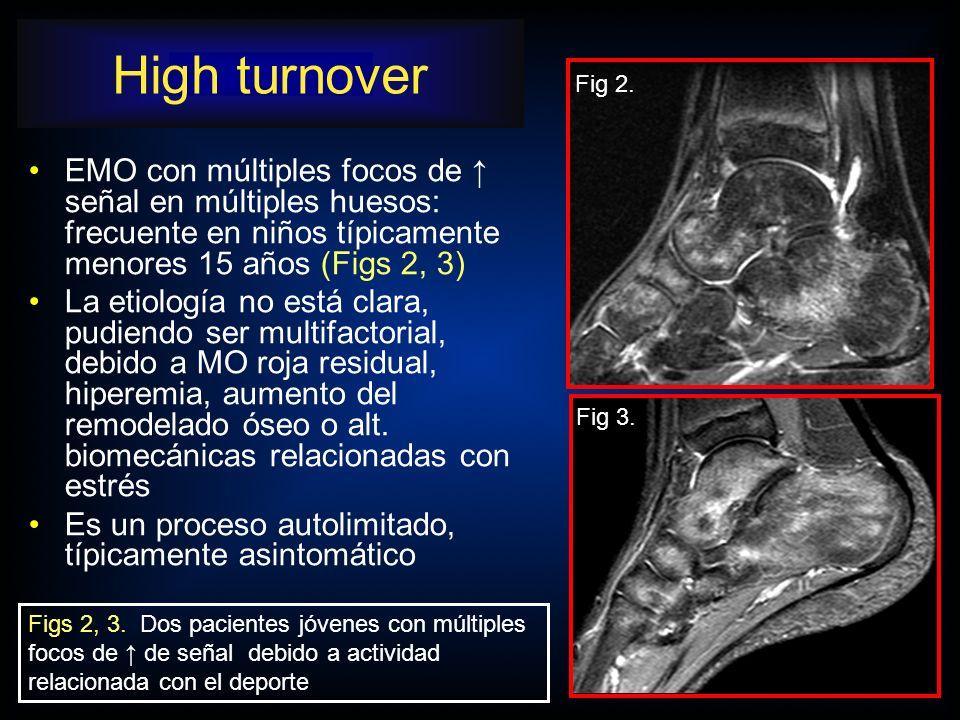 EMO con múltiples focos de señal en múltiples huesos: frecuente en niños típicamente menores 15 años (Figs 2, 3) La etiología no está clara, pudiendo