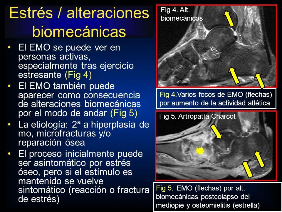 Fig 4.Varios focos de EMO (flechas) por aumento de la actividad atlética Fig 4. Alt. biomecánicas El EMO se puede ver en personas activas, especialmen