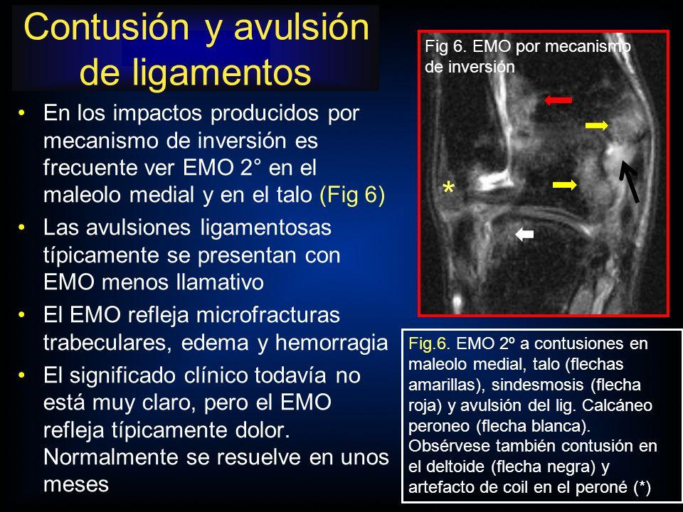 En los impactos producidos por mecanismo de inversión es frecuente ver EMO 2° en el maleolo medial y en el talo (Fig 6) Las avulsiones ligamentosas tí
