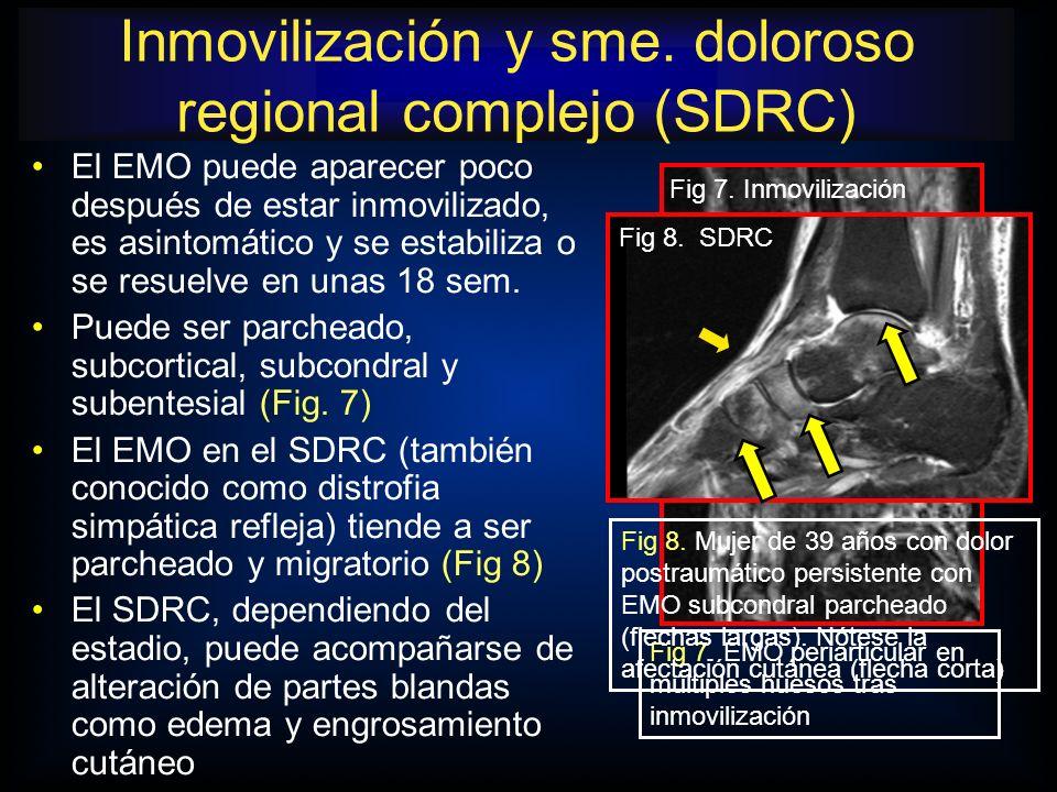El EMO puede aparecer poco después de estar inmovilizado, es asintomático y se estabiliza o se resuelve en unas 18 sem. Puede ser parcheado, subcortic