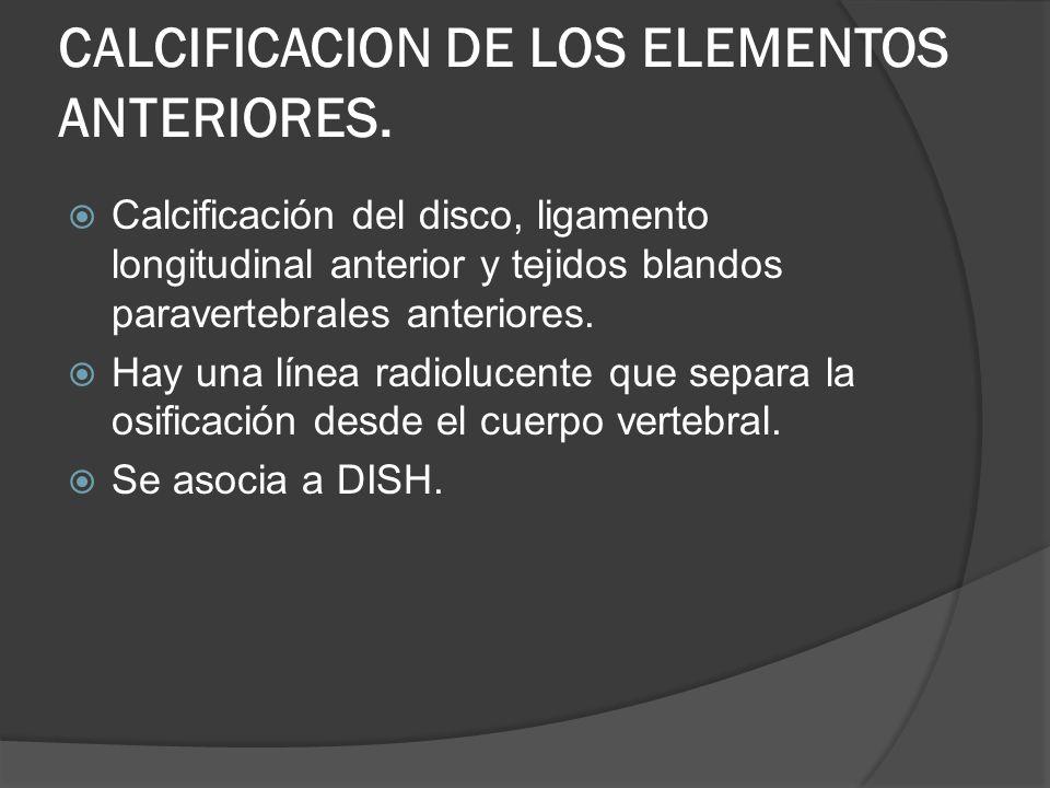 CALCIFICACION DE LOS ELEMENTOS ANTERIORES. Calcificación del disco, ligamento longitudinal anterior y tejidos blandos paravertebrales anteriores. Hay
