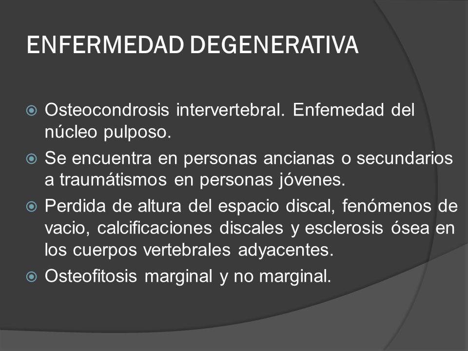 ENFERMEDAD DEGENERATIVA Osteocondrosis intervertebral. Enfemedad del núcleo pulposo. Se encuentra en personas ancianas o secundarios a traumátismos en