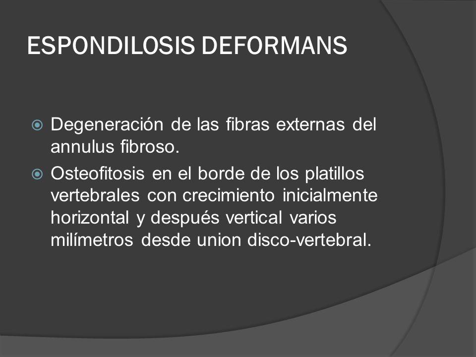 ESPONDILOSIS DEFORMANS Degeneración de las fibras externas del annulus fibroso. Osteofitosis en el borde de los platillos vertebrales con crecimiento
