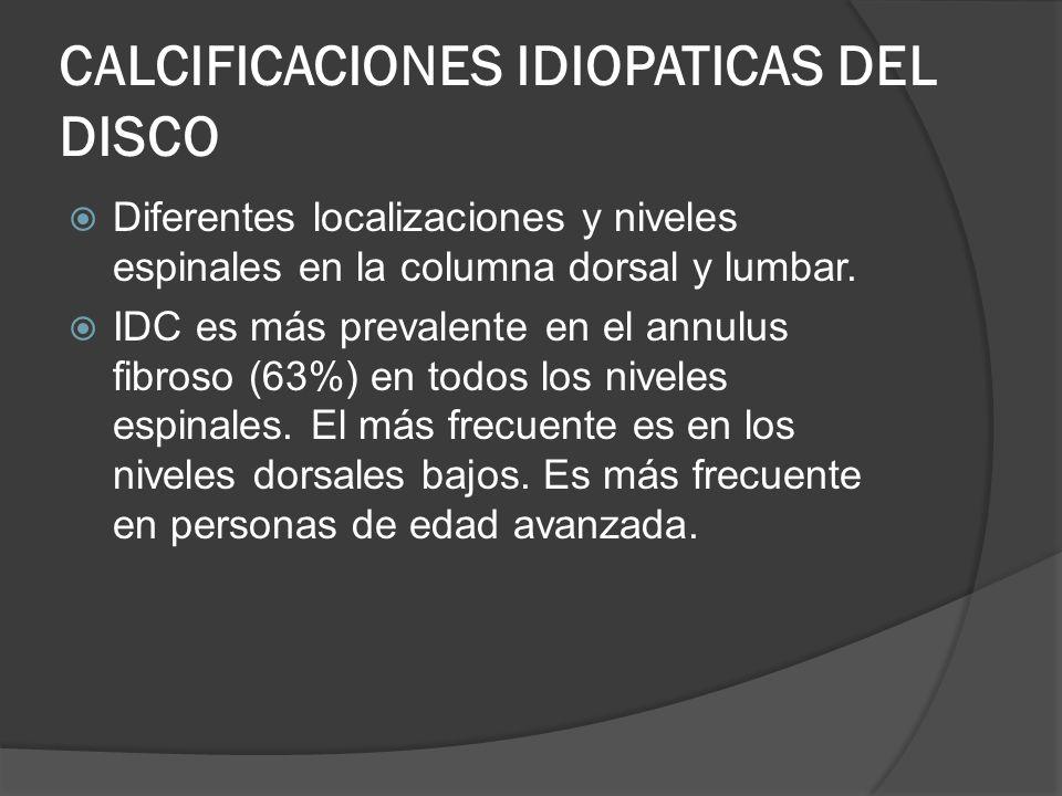 CALCIFICACIONES IDIOPATICAS DEL DISCO Diferentes localizaciones y niveles espinales en la columna dorsal y lumbar. IDC es más prevalente en el annulus