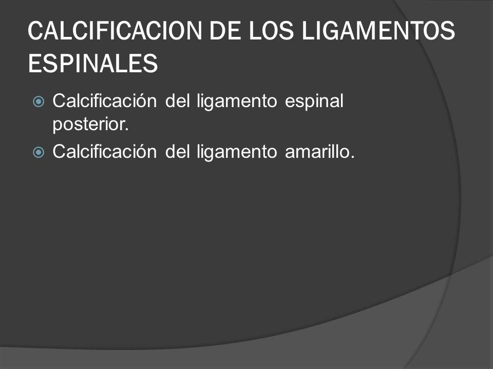 CALCIFICACION DE LOS LIGAMENTOS ESPINALES Calcificación del ligamento espinal posterior. Calcificación del ligamento amarillo.
