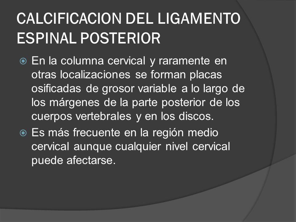 CALCIFICACION DEL LIGAMENTO ESPINAL POSTERIOR En la columna cervical y raramente en otras localizaciones se forman placas osificadas de grosor variabl