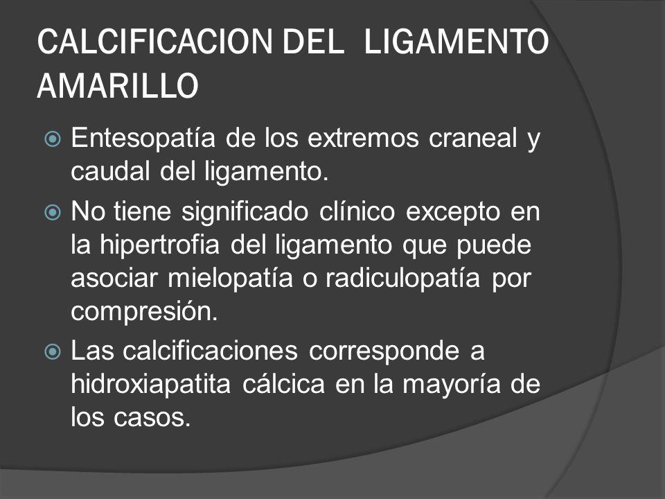 CALCIFICACION DEL LIGAMENTO AMARILLO Entesopatía de los extremos craneal y caudal del ligamento. No tiene significado clínico excepto en la hipertrofi