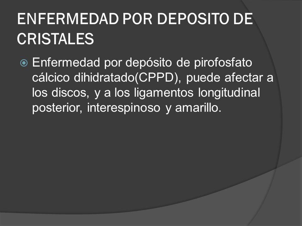 ENFERMEDAD POR DEPOSITO DE CRISTALES Enfermedad por depósito de pirofosfato cálcico dihidratado(CPPD), puede afectar a los discos, y a los ligamentos