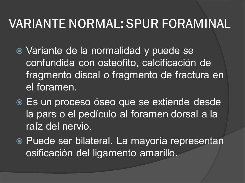 VARIANTE NORMAL: SPUR FORAMINAL Variante de la normalidad y puede se confundida con osteofito, calcificación de fragmento discal o fragmento de fractu