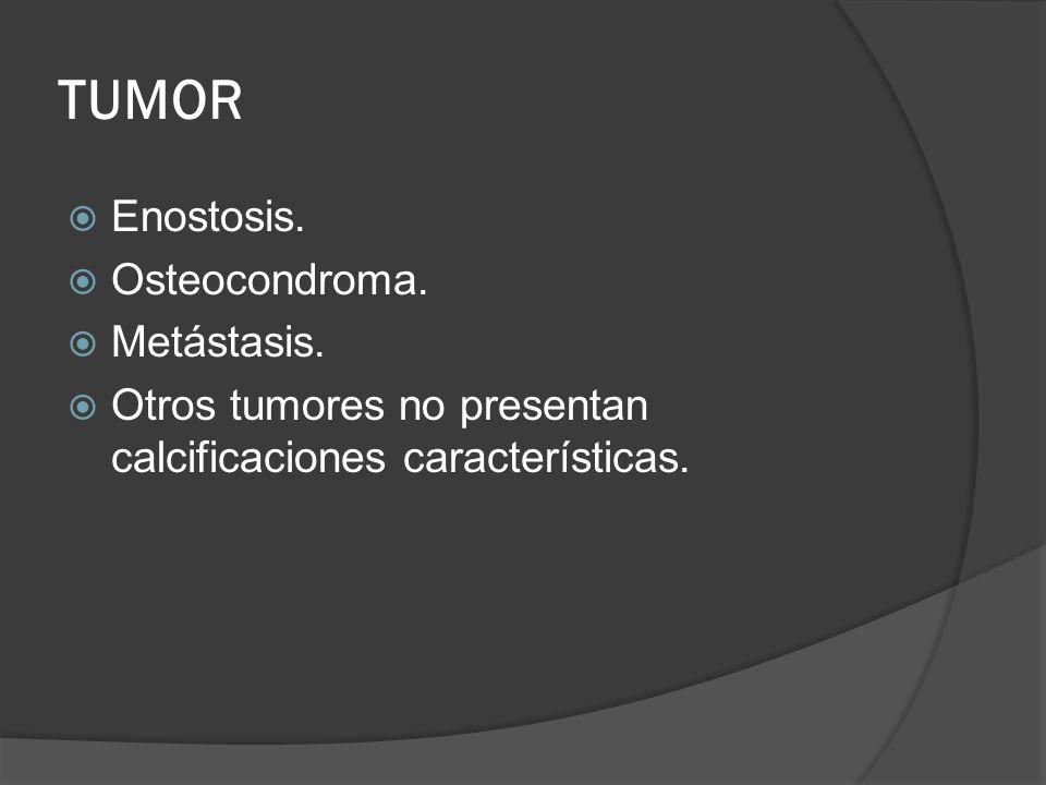 TUMOR Enostosis. Osteocondroma. Metástasis. Otros tumores no presentan calcificaciones características.