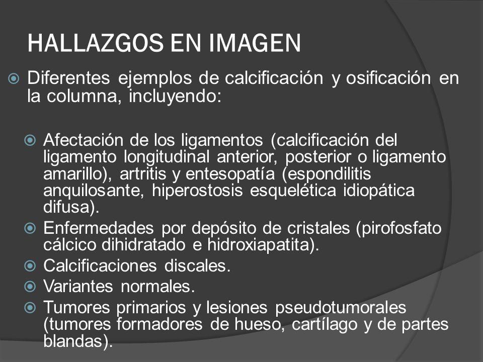 HALLAZGOS EN IMAGEN Diferentes ejemplos de calcificación y osificación en la columna, incluyendo: Afectación de los ligamentos (calcificación del liga