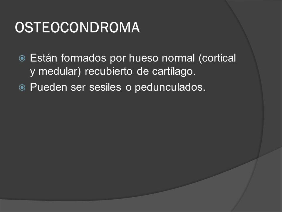 OSTEOCONDROMA Están formados por hueso normal (cortical y medular) recubierto de cartílago. Pueden ser sesiles o pedunculados.