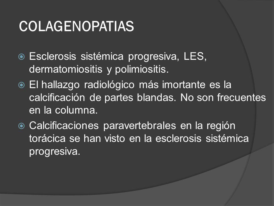 COLAGENOPATIAS Esclerosis sistémica progresiva, LES, dermatomiositis y polimiositis. El hallazgo radiológico más imortante es la calcificación de part